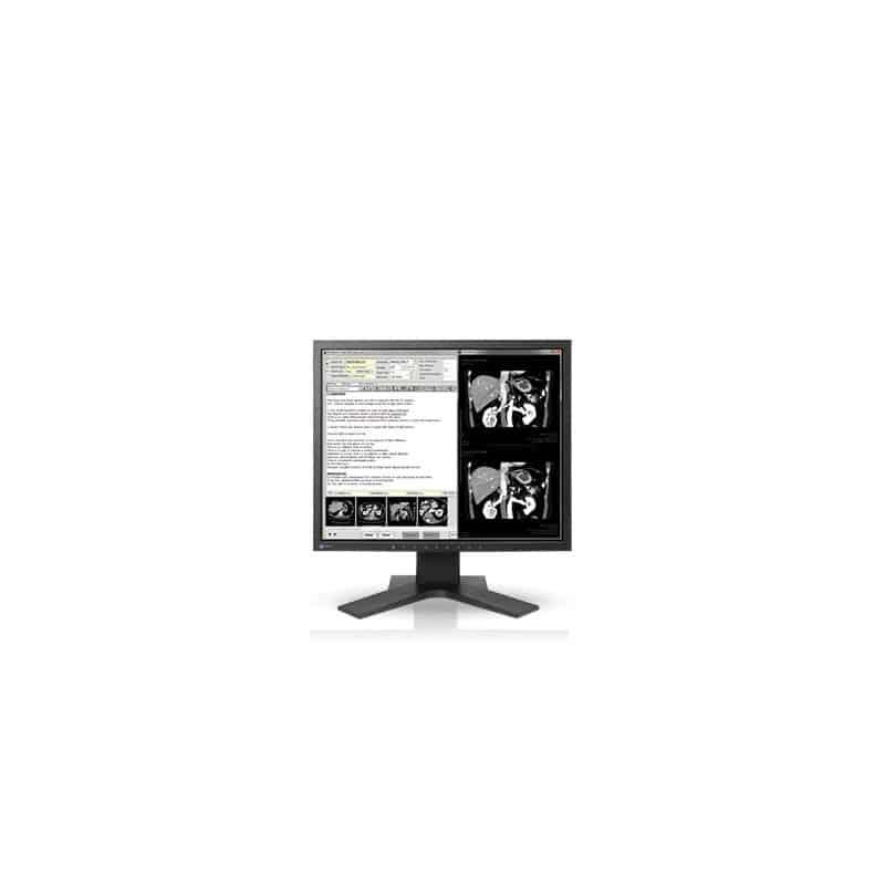Ecran EIZO RadiForce MX194